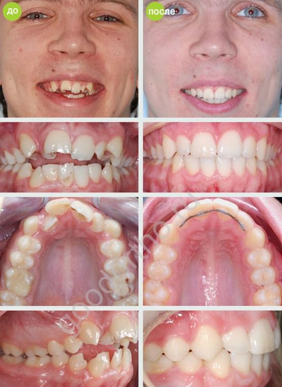 этом году можно ли очистить зубы после серебрения телефоны